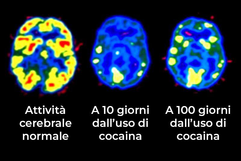 attività cerebrale uso cocaina